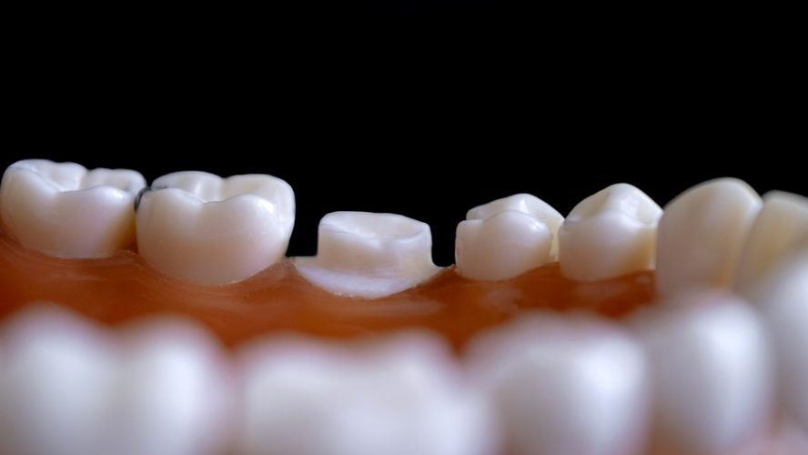 Tips to Choose A Reliable Los Alamitos Cosmetic Dentist